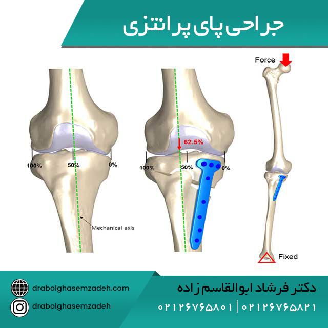 جراحی پای پرانتزی