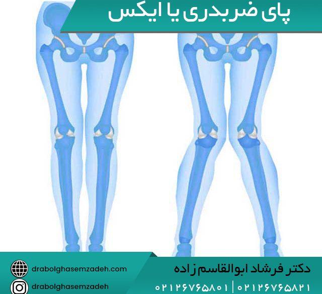 پای ضربدری یا ایکس