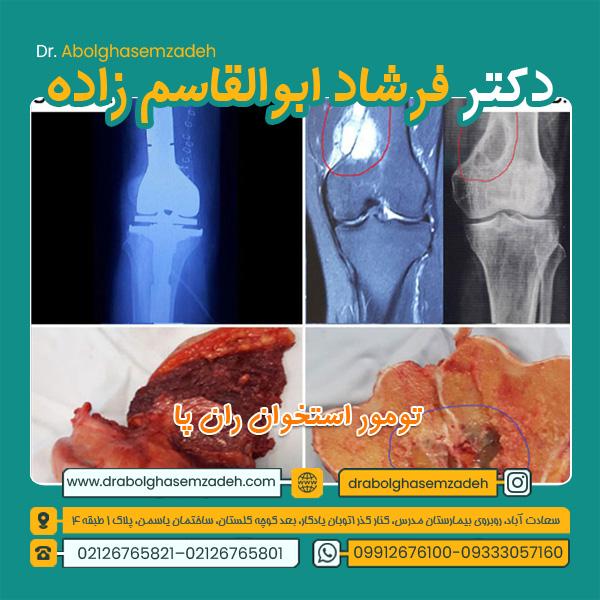 تومور ران پا 1