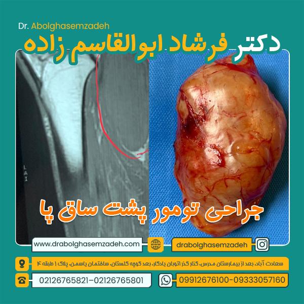 جراحی تومور پشت ساق پا 1