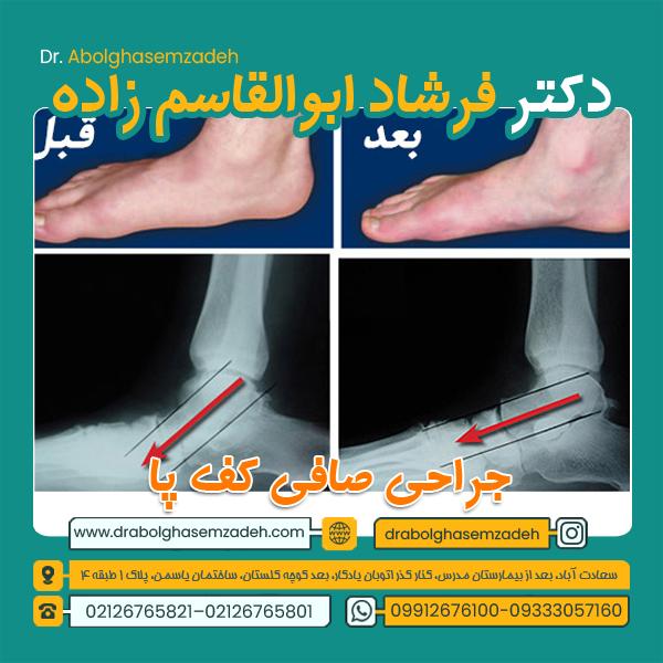 درمان صافی کف پا